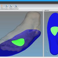 OrthoFoot 3D